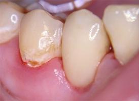 Пришеечный кариес дентина